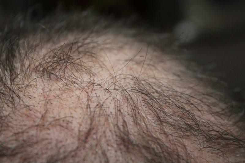 Alopezie - Haarausfall